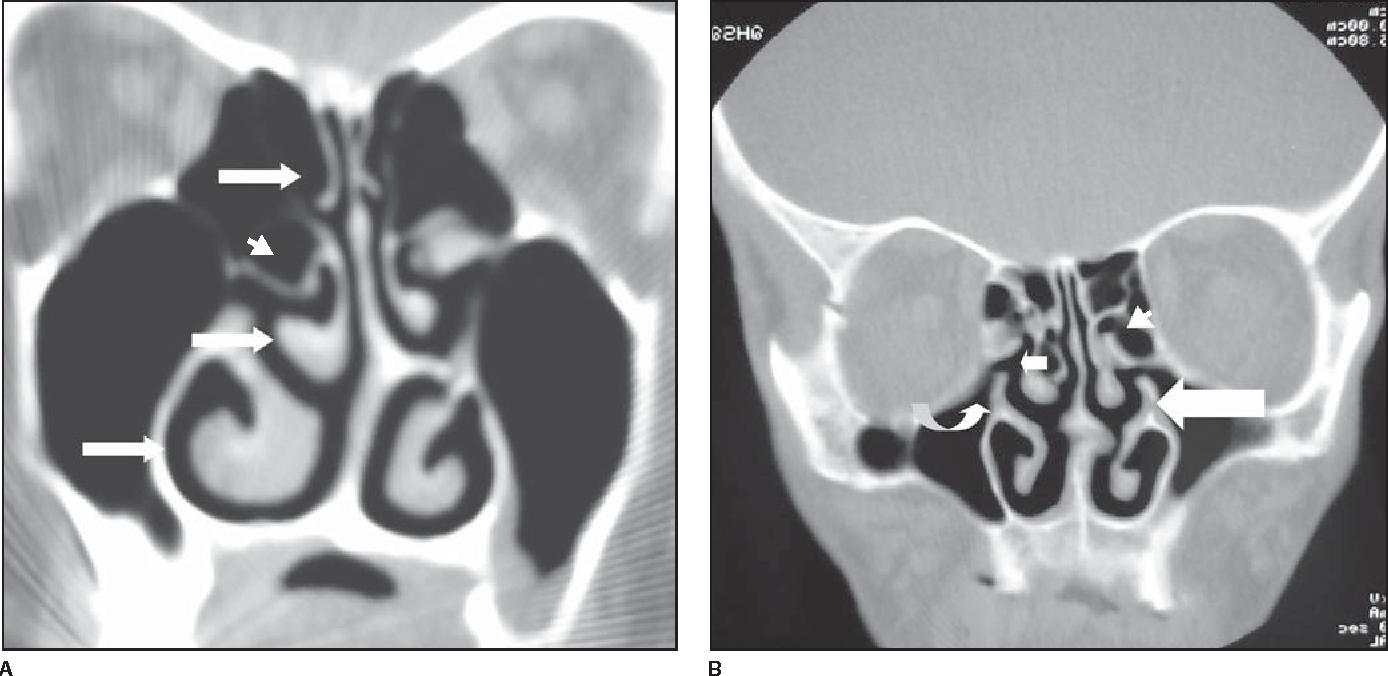 Figure 2 From Sinonasal Complex Radiological Anatomy Semantic