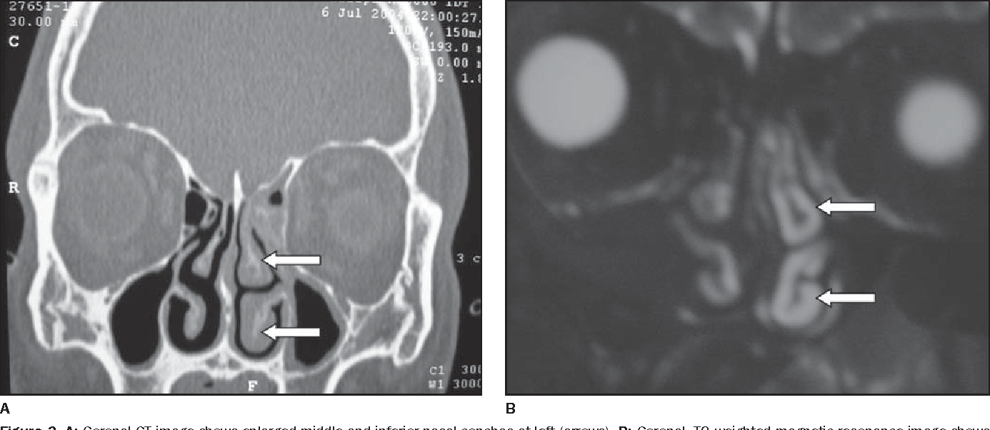 Figure 3 From Sinonasal Complex Radiological Anatomy Semantic