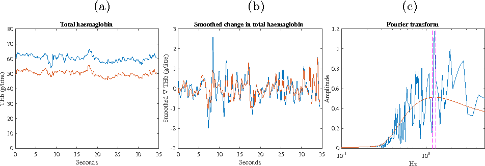 Figure 3 for Fast Estimation of Haemoglobin Concentration in Tissue Via Wavelet Decomposition