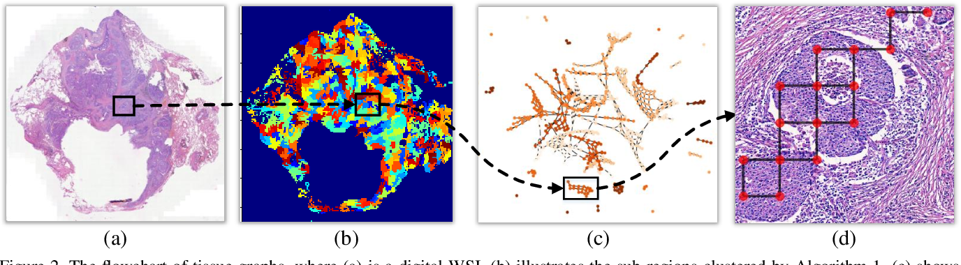 Figure 3 for Histopathology WSI Encoding based on GCNs for Scalable and Efficient Retrieval of Diagnostically Relevant Regions