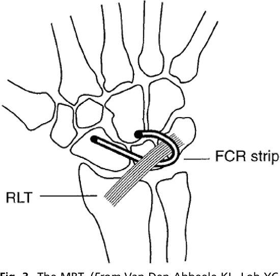 Scapholunate Ligament Tears: Acute Reconstructive Options ...