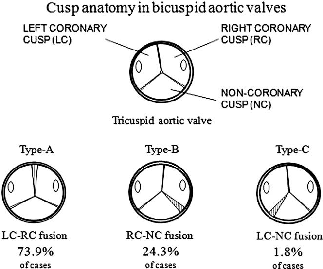 Unique Coronary Cusp Anatomy Picture Collection Anatomy And