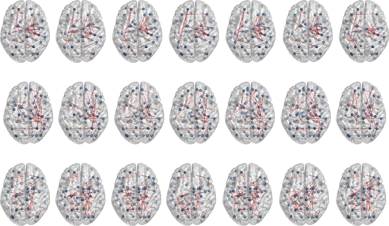 Figure 2 for Encoding Multi-Resolution Brain Networks Using Unsupervised Deep Learning