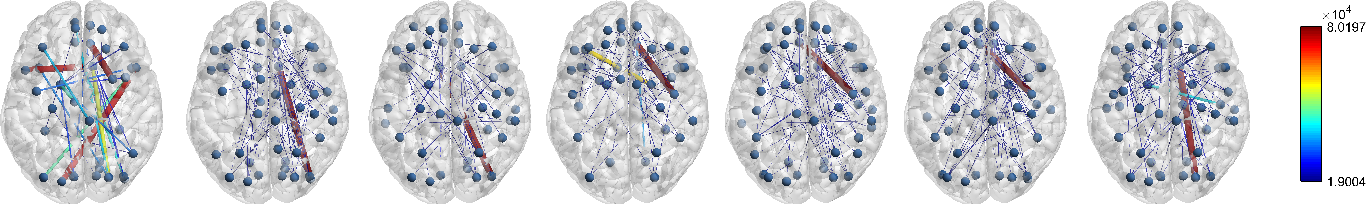 Figure 3 for Encoding Multi-Resolution Brain Networks Using Unsupervised Deep Learning