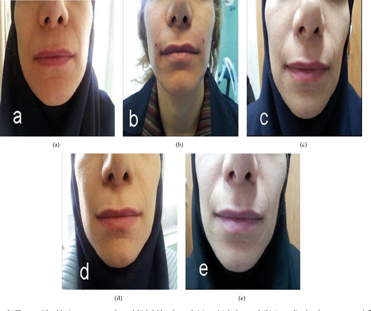 figure 2: the considerable improvement of nasolabial folds after subcision
