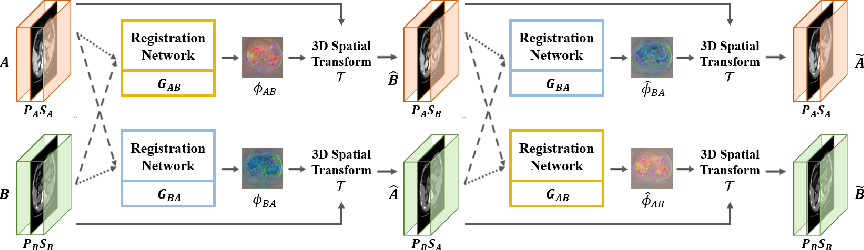 Figure 1 for Unsupervised Deformable Image Registration Using Cycle-Consistent CNN