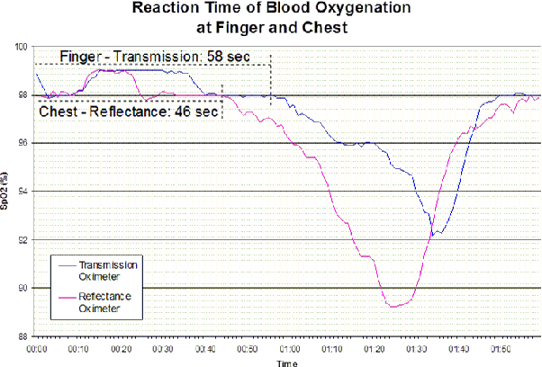 Blood oxygen level measurement with a chest based pulse oximetry figure 1 ccuart Images