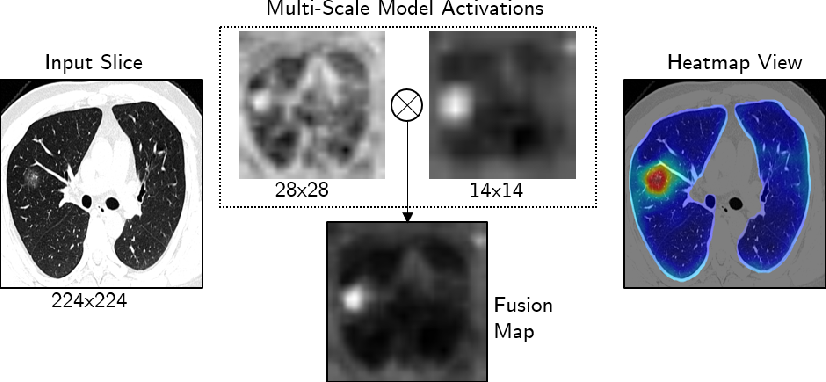 Figure 3 for Coronavirus Detection and Analysis on Chest CT with Deep Learning