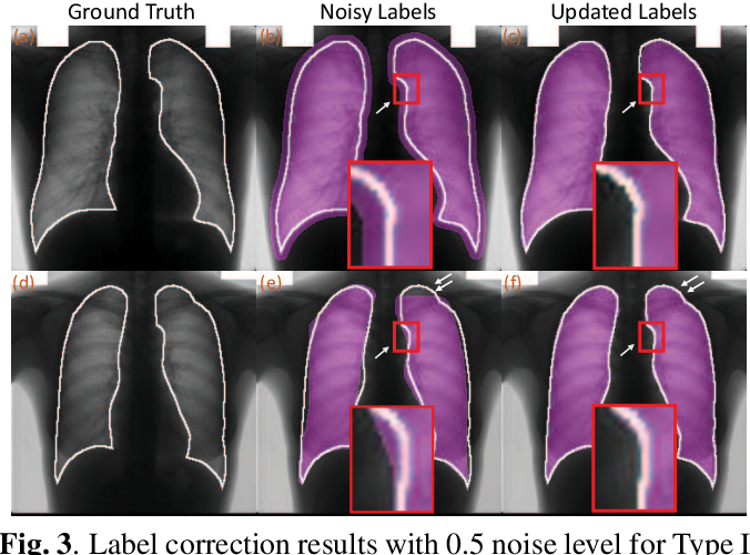 Figure 4 for Co-Seg: An Image Segmentation Framework Against Label Corruption