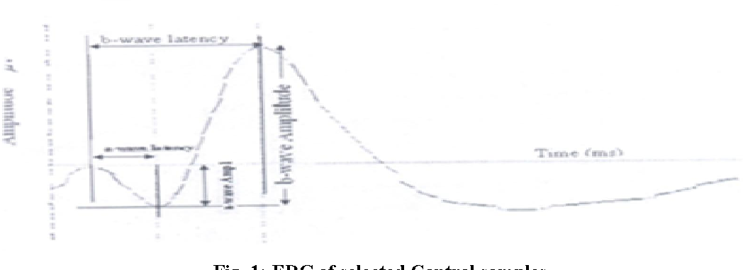 Fig. 1: ERG of selected Control samples