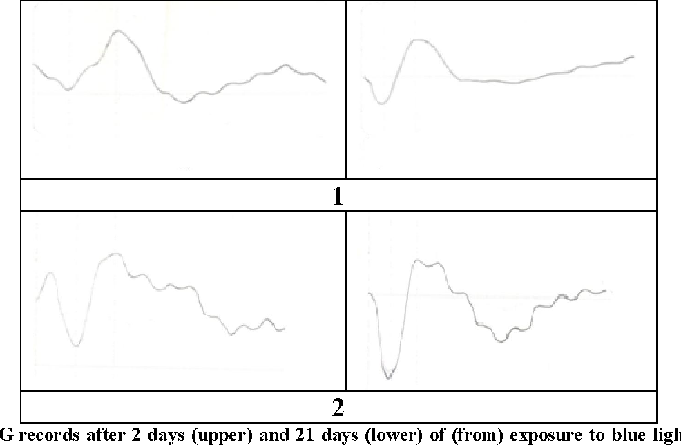 Figure 2: ERG records after 2 days (upper) and 21 days (lower) of (from) exposure to blue light without (1) and with (2) grape seeds administration