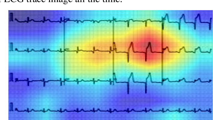 Figure 3 for COV-ECGNET: COVID-19 detection using ECG trace images with deep convolutional neural network