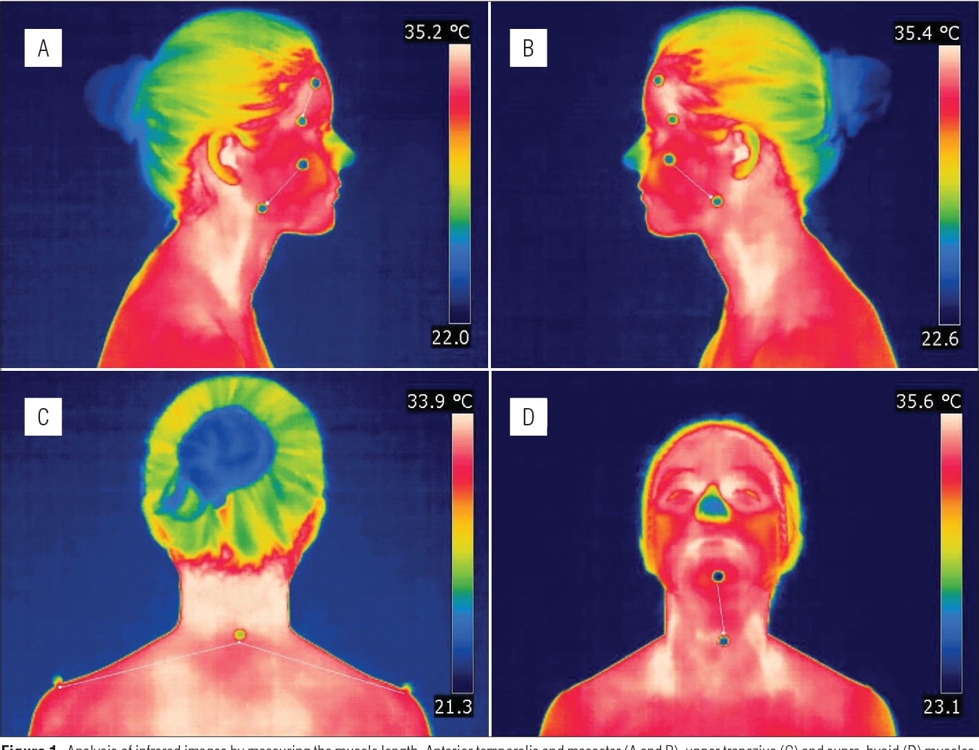 Intra And Inter Rater Reliability Of Infrared Image Analysis Of
