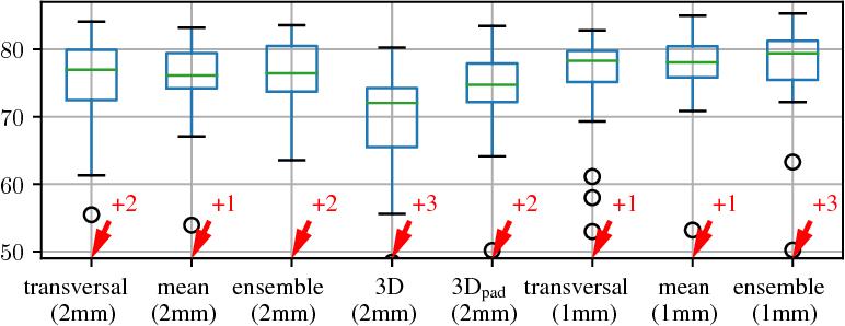 Figure 3 for Comparison of U-net-based Convolutional Neural Networks for Liver Segmentation in CT