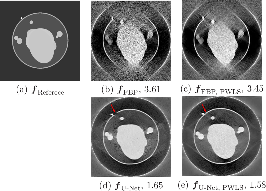 Figure 4 for Limited Angle Tomography for Transmission X-Ray Microscopy Using Deep Learning
