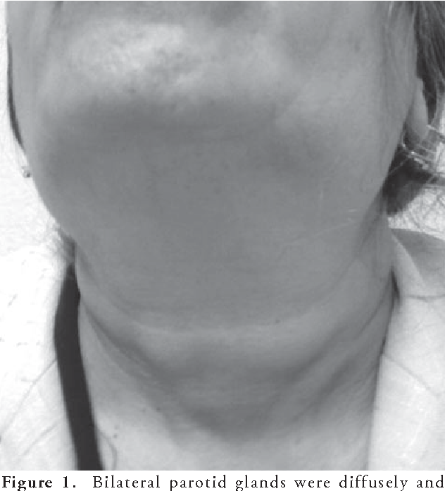 Figure 1. Bilateral parotid glands were diffusely and symmetrically enlarged.