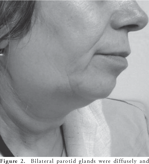 Figure 2. Bilateral parotid glands were diffusely and symmetrically enlarged right side view.