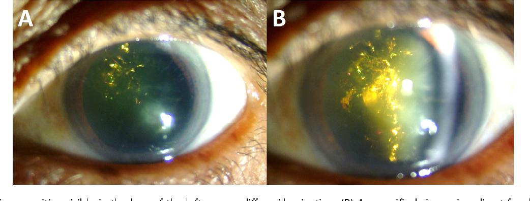 Figure 1 From Christmas Tree Cataract Semantic Scholar
