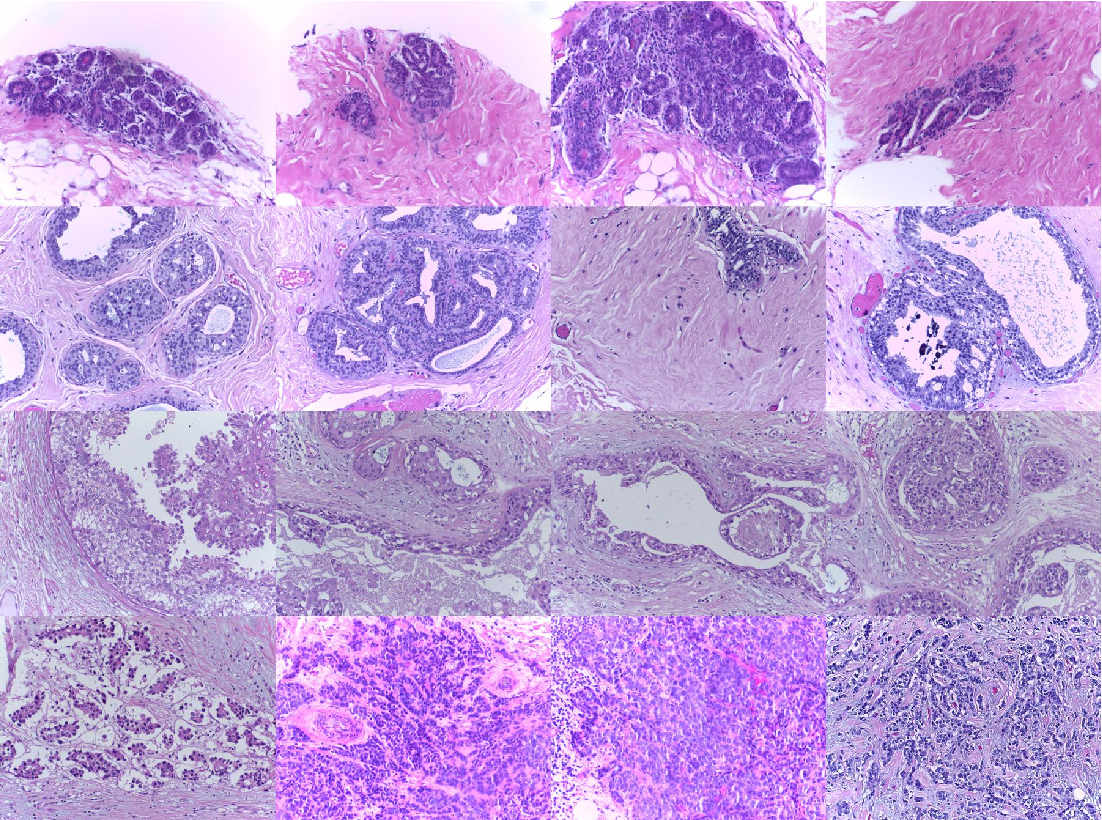 Figure 3 for Deep weakly-supervised learning methods for classification and localization in histology images: a survey