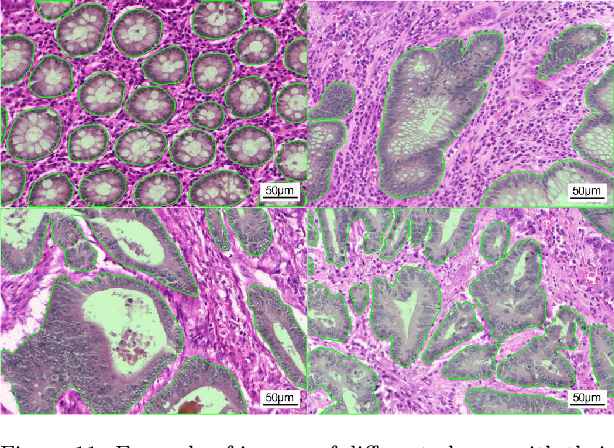 Figure 4 for Deep weakly-supervised learning methods for classification and localization in histology images: a survey