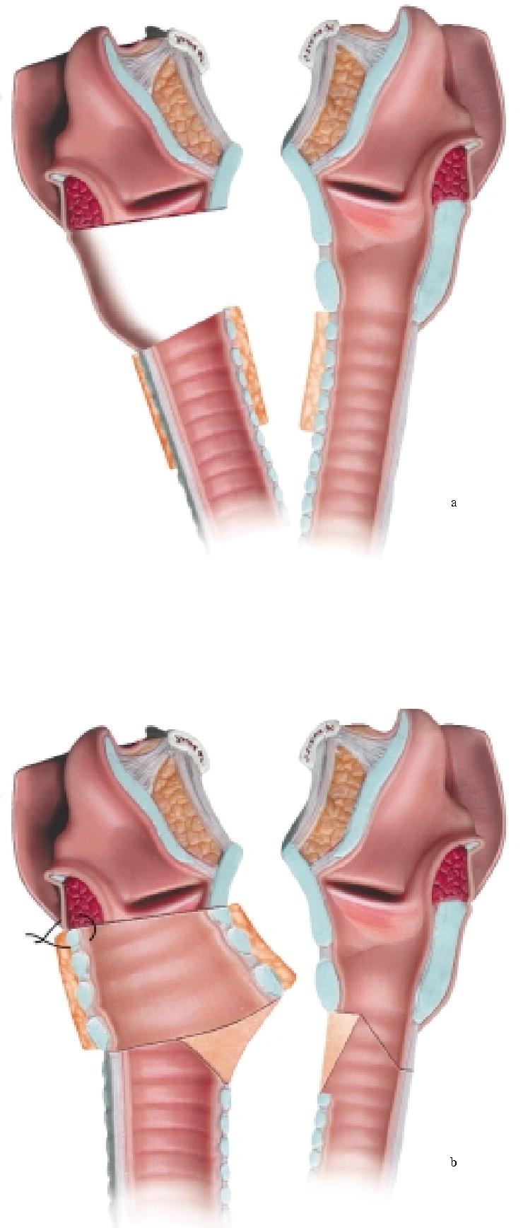 figure 5.51