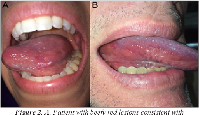 The Squamous cell cancer of the oral tongue seems