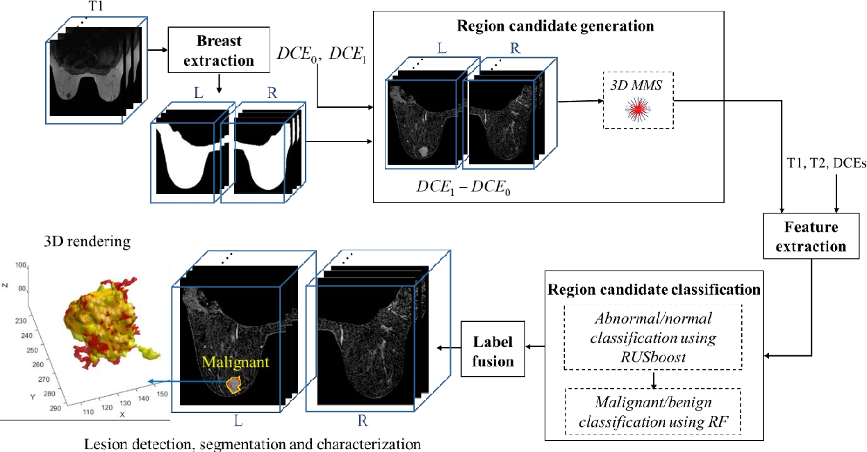 Figure 1 for Automatic lesion detection, segmentation and characterization via 3D multiscale morphological sifting in breast MRI