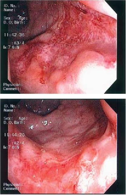 Figure 1 . Colonoscopic fi ndings showing erythema and exudative ulceration of the rectal mucosa .
