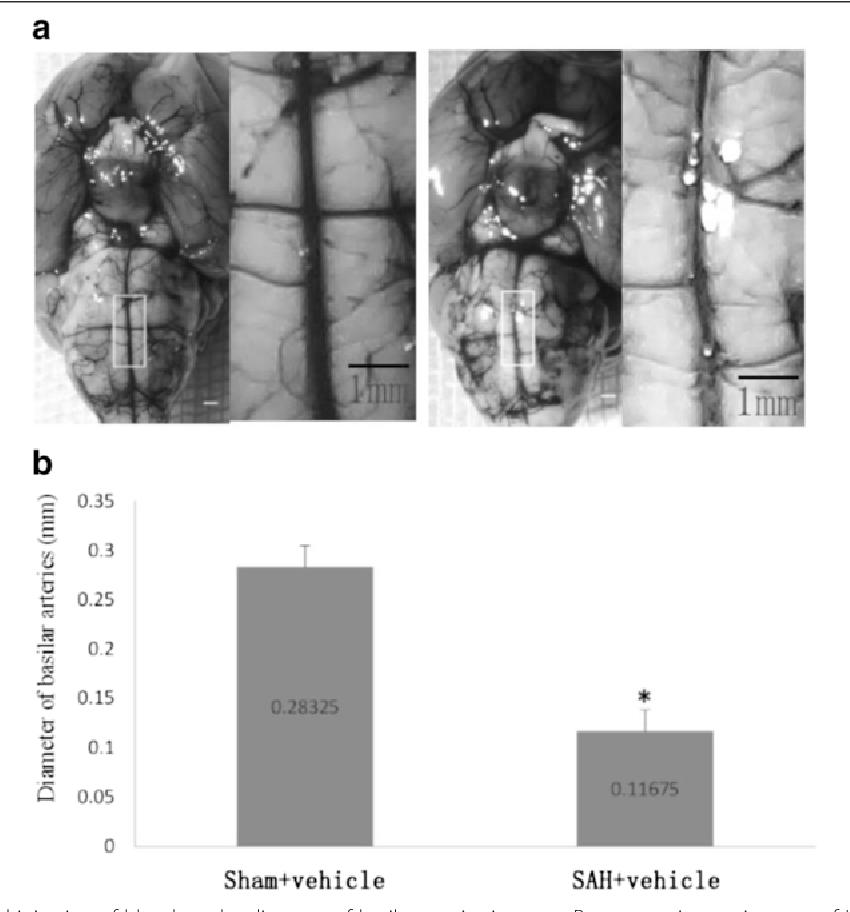 Cerebral Vasospasm: Neurovascular Events After Subarachnoid Hemorrhage