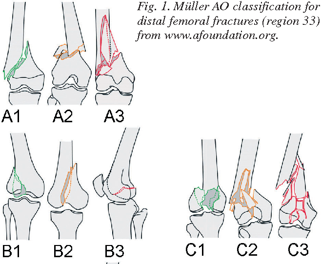 Figure 1 From Current Concepts In Fractures Of The Distal Femur