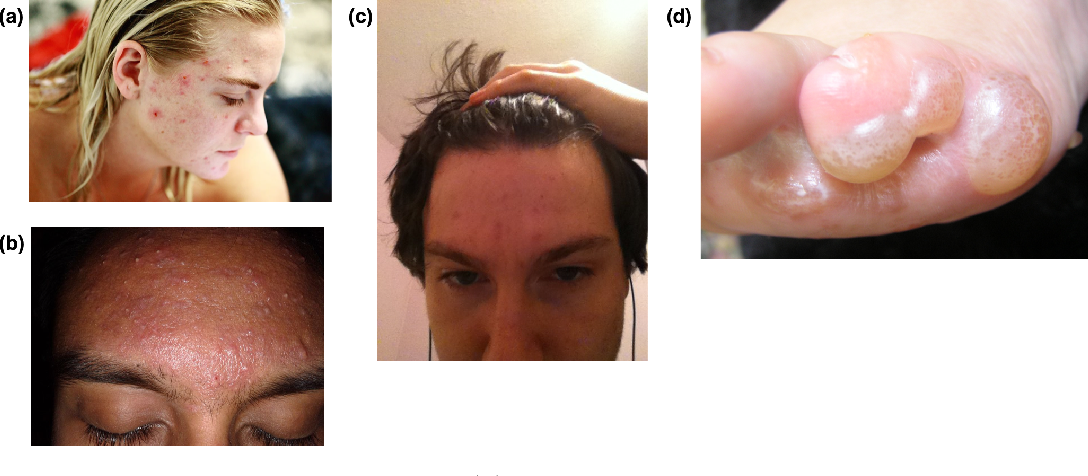 Figure 3 for TrueImage: A Machine Learning Algorithm to Improve the Quality of Telehealth Photos