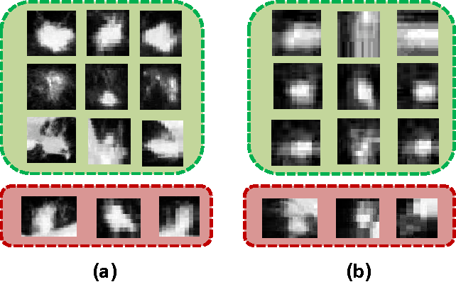 Figure 4 for TumorNet: Lung Nodule Characterization Using Multi-View Convolutional Neural Network with Gaussian Process