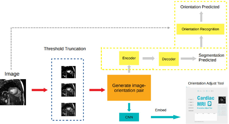 Figure 1 for Recognition and standardization of cardiac MRI orientation via multi-tasking learning and deep neural networks