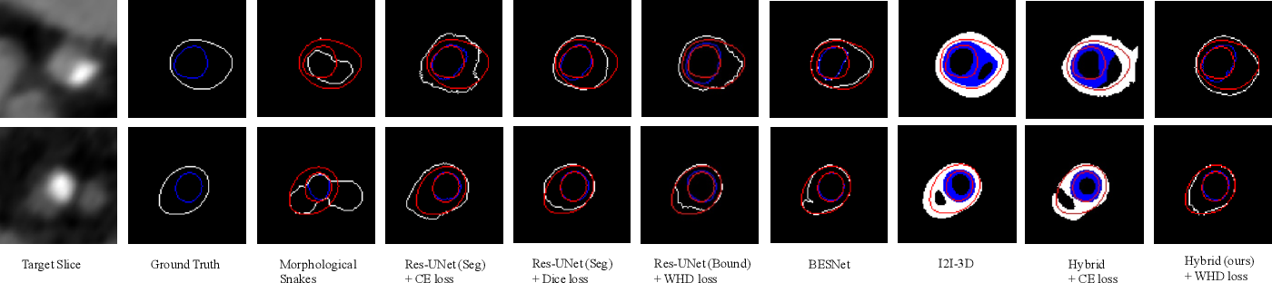 Figure 3 for Coronary Wall Segmentation in CCTA Scans via a Hybrid Net with Contours Regularization
