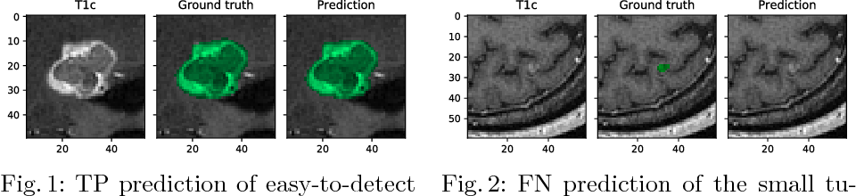 Figure 2 for Tumor Delineation For Brain Radiosurgery by a ConvNet and Non-Uniform Patch Generation