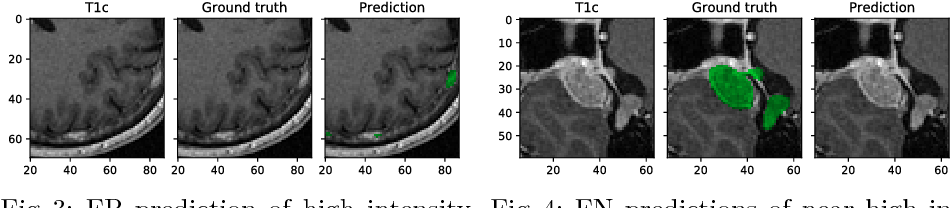 Figure 4 for Tumor Delineation For Brain Radiosurgery by a ConvNet and Non-Uniform Patch Generation