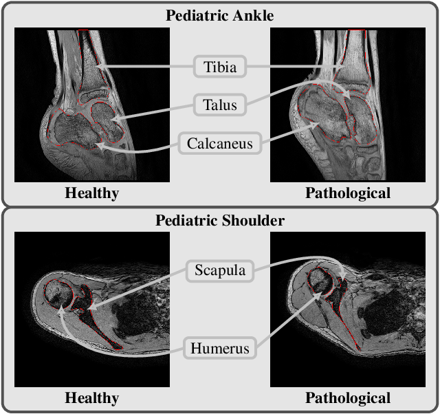 Figure 1 for Multi-structure bone segmentation in pediatric MR images with combined regularization from shape priors and adversarial network