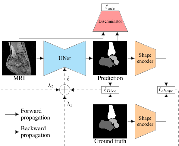 Figure 3 for Multi-structure bone segmentation in pediatric MR images with combined regularization from shape priors and adversarial network