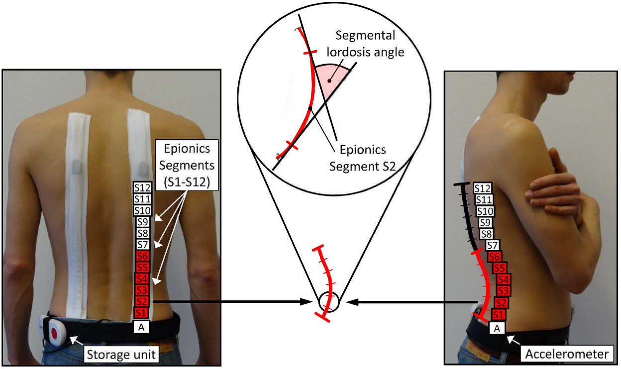 Age Related Loss Of Lumbar Spinal Lordosis And Mobility A Study Of