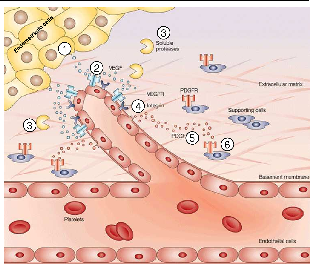 Figure 5: Hypothetical depiction of angiogenesis processes in endometriosis. (1) Endometriotic cells are proposed to release pro-angiogenic factors, such as vascular endothelial growth factor (VEGF), which diffuse into nearby tissues and (2) bind to receptors on the endothelial cells of preexisting blood vessels, leading to their activation. Such interactions between endothelial cells and endometriotic cells lead to the secretion and activation of various proteolytic enzymes, (3) such as matrix metalloproteinases (MMPs), which degrade the basement membrane of vessels and the extracellular matrix. Degradation allows activated endothelial cells to migrate towards the endometriotic cells. (4) Integrin molecules help to pull the sprouting new blood vessel forward. The endothelial cells deposit a new basement membrane and secrete growth factors, (5) such as platelet-derived growth factor (PDGF), which attract (6) supporting cells to stabilise the new vessel. PDGFR = PDGF receptor; VEGFR = VEGF receptor (modified after Cristofanilli et al., 2002)