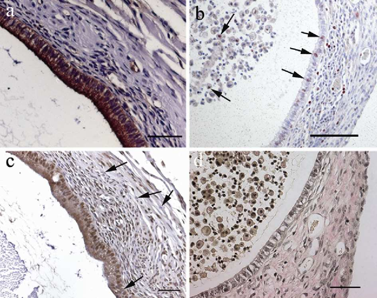 Figure 13: Histological and immunohistochemical examination of EGFP-expressing endometriotic lesions. (a) Anti-cytokeratin staining demonstrates glandular epithelial cells in brown around the cystic lumen. (b) Proliferating cells positive for Ki67 in lesion epithelium, stroma and in lesion lumen content are indicated by red stained nuclei (black arrows). (c) ER-α positive nuclei in epithelium and stroma are stained brown. Some ER-α negative nuclei are exemplarily indicated by the arrows. (d) Weigert-Elastica-van Gieson staining of an endometriotic lesion reveals collagenic connective tissue in magenta. Nuclei are stained black. Scale bar: a, c, d = 50 µm, b = 100 µm.
