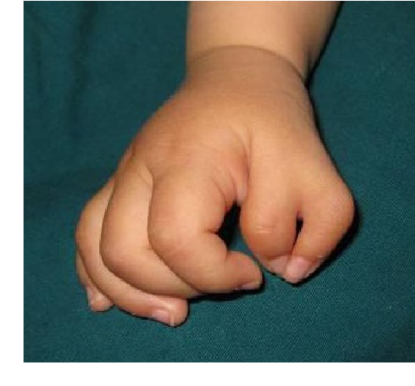 Figure 1 from The anatomy of Wassel type IV-D thumb duplication ...