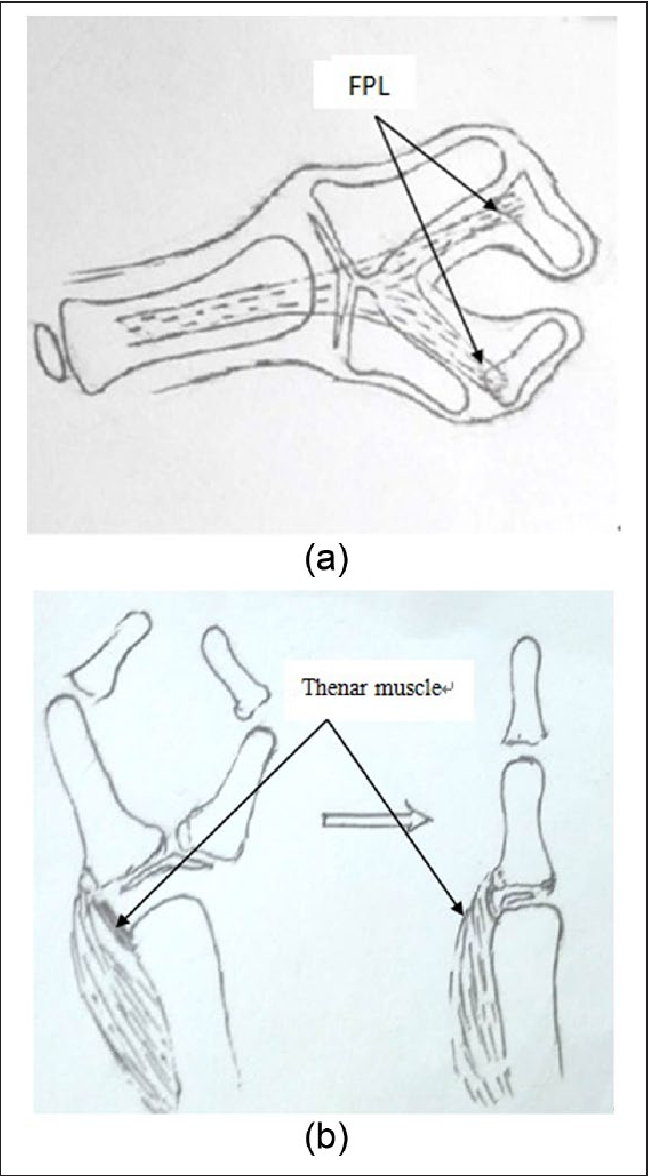 Figure 8 From The Anatomy Of Wassel Type Iv D Thumb Duplication