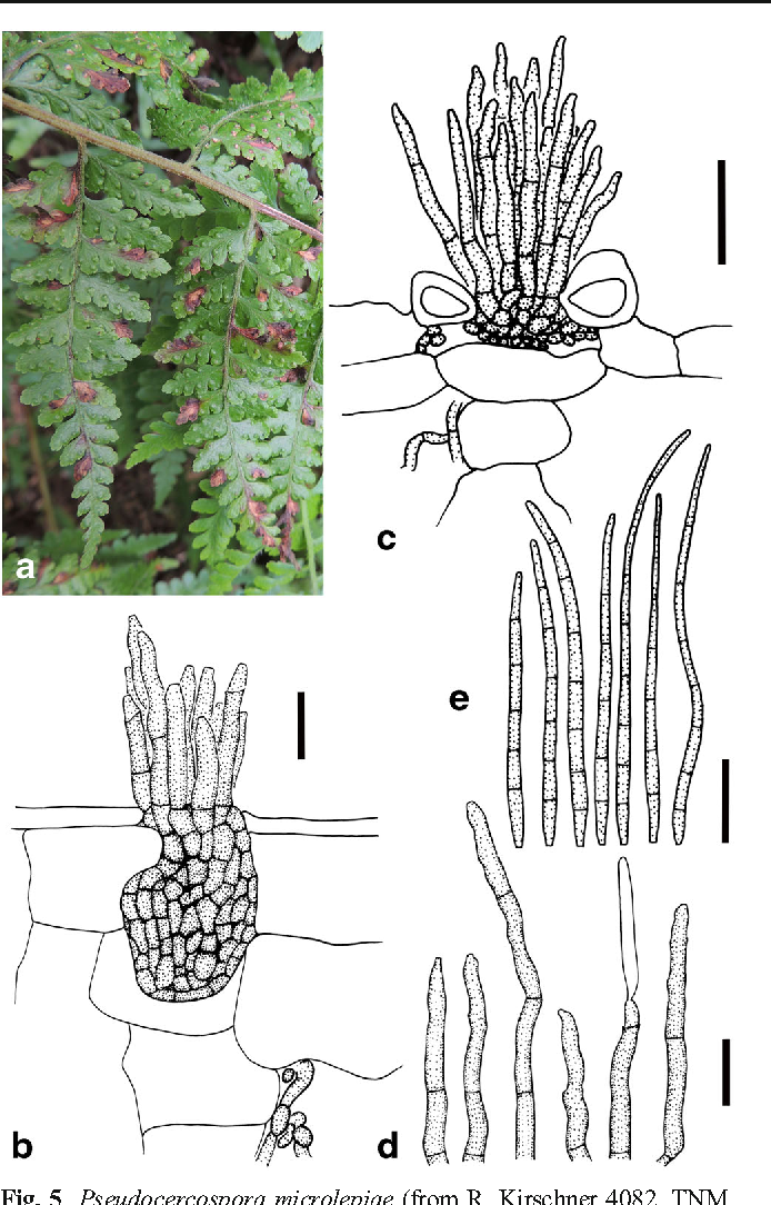 Fig. 5 Pseudocercospora microlepiae (from R. Kirschner 4082, TNM, holotype). a Leaf spots onMicrolepia speluncae; b stroma and fascicle of short conidiophores erumpent through adaxial epidermis in transversal leaf section; c reduced stroma and fascicle of long conidiophores penetrating through stoma of abaxial epidermis; d conidiophores; e conidia. Scale bars 20 μm, except (b) 10 μm
