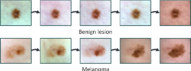 Figure 1 for Early Melanoma Diagnosis with Sequential Dermoscopic Images