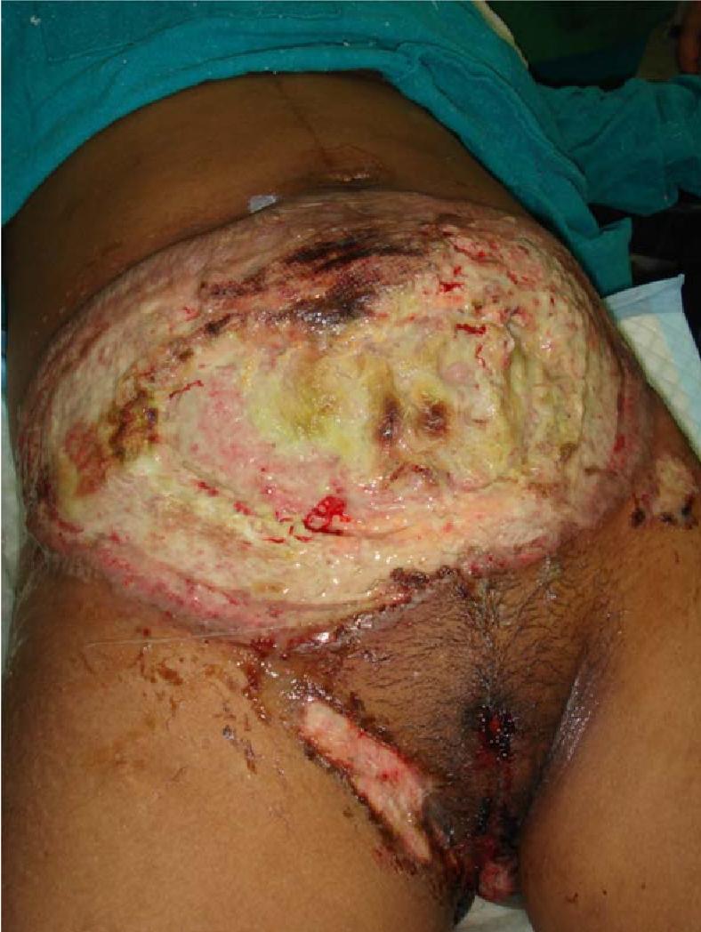 Pyoderma Gangrenosum Following A Routine Caesarean Section