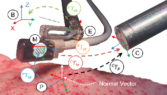 Figure 1 for Autonomous Tissue Scanning under Free-Form Motion for Intraoperative Tissue Characterisation