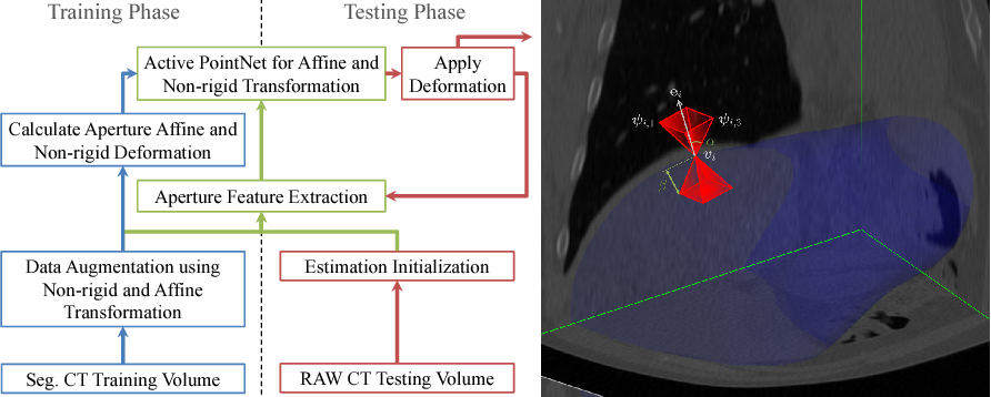 Figure 1 for Action Learning for 3D Point Cloud Based Organ Segmentation