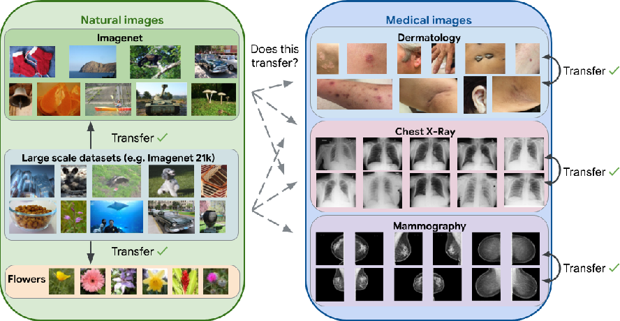Figure 1 for Supervised Transfer Learning at Scale for Medical Imaging