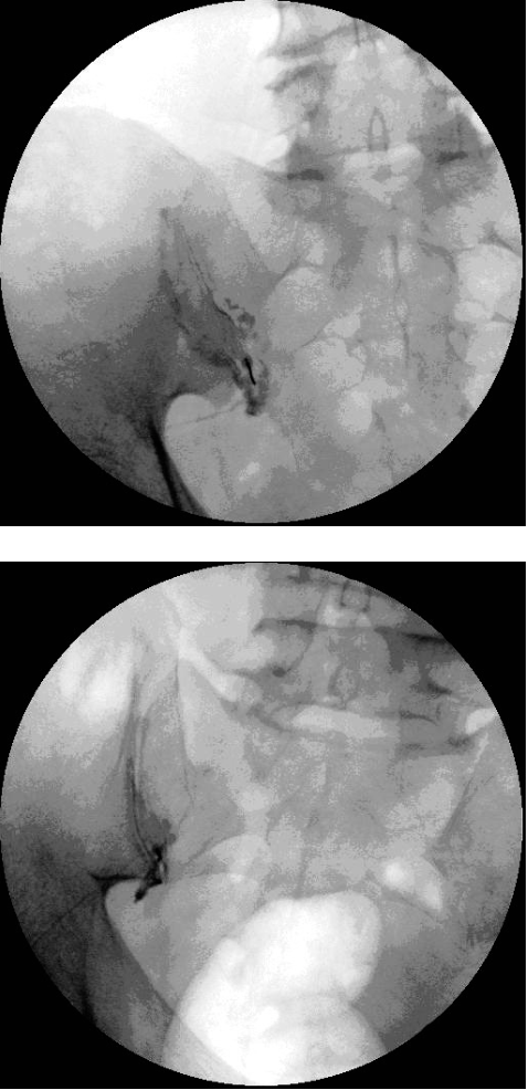 Figure 4. Intra-articular injection of sacroiliac joint with contrast in anterior-posterior view.